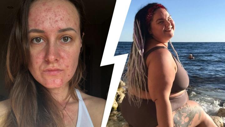 «Заросла огромными прыщами»: истории женщин с сильнейшим гормональным сбоем — эксперт объяснила, как распознать проблему