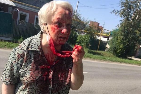 Все лицо у пожилой женщины было в крови