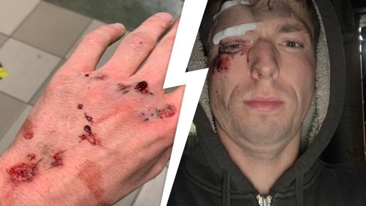 В Екатеринбурге велосипедист налетел на натянутый трос. Объясняем, сможет ли он отсудить ущерб у УК