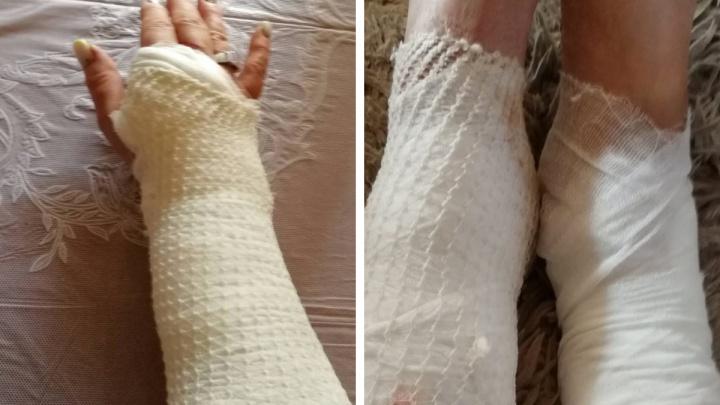 «Как будто ножами резали»: в Ярославле на сотрудницу управдома напали уличные кошки