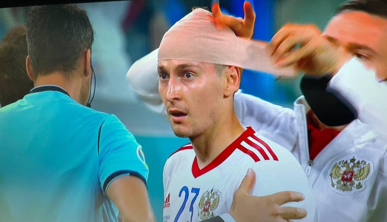 Кузяев получил травму