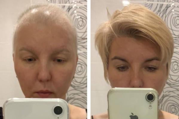 Эти фотографии Лариса сделала до и после лечения