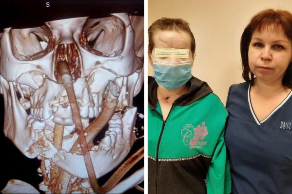 Слева — снимок раздробленной челюсти, справа — пациентка с медиком краевой больницы