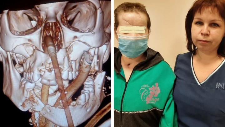 Красноярские хирурги спасли лицо женщине, которой в аварии оторвало язык и челюсть
