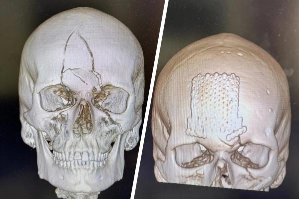Пациенту поставили титановую пластину на лоб и в челюсть