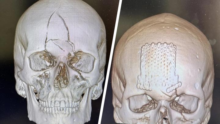 Красноярские врачи заново собрали череп пострадавшему в ДТП: у него даже не останется шрамов