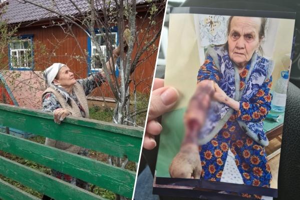По словам одной из дочерей Анны Гавриловны, она всегда была бодра и активна. Например, на фото слева в свои 78 год назад она красит ветки. Фото справа сделано в больнице за несколько дней до смерти
