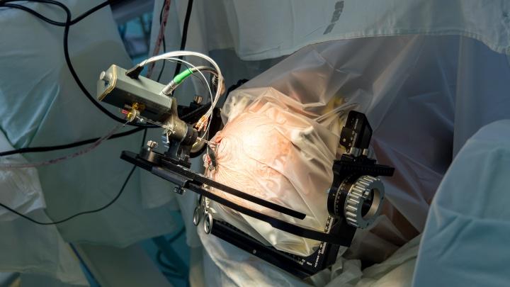 В Красноярске провели первую операцию на мозге, при которой человек находился в сознании