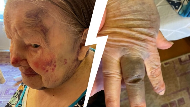 «Пинала, била и таскала за волосы». В Екатеринбурге сиделку обвиняют в избиении 95-летней женщины
