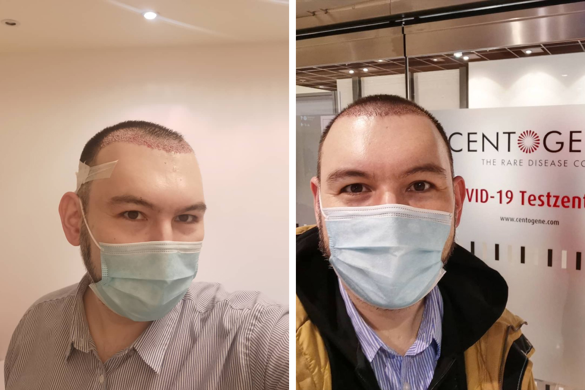 Фото слева — сразу после операции, справа — через несколько дней, заметно, что волосы уже отросли