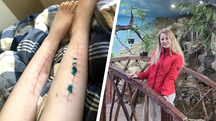 Айтишнику предъявили обвинение за аварию в Академгородке — пострадавшая в ДТП перенесла семь операций