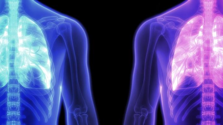 Как отличить бактериальную пневмонию от коронавирусной? Рассказывают врачи