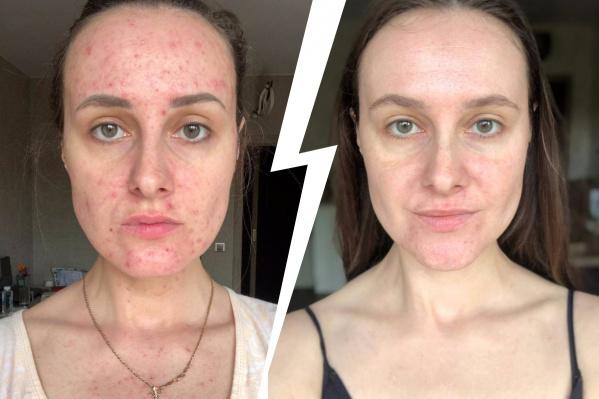 В 2018 году у Татьяны начались проблемы с кожей