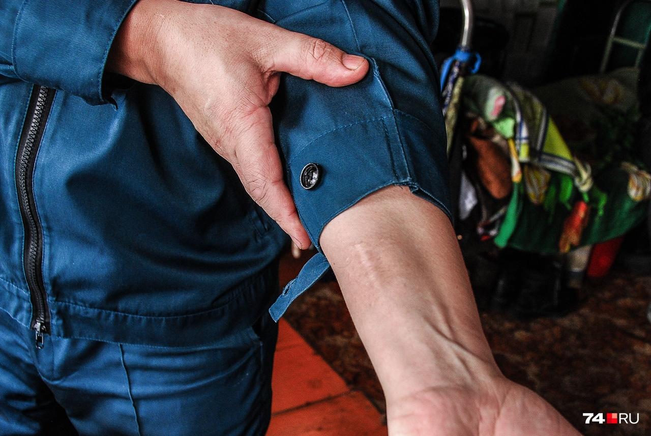 Шрам от ранения, полученного при штурме Грозного