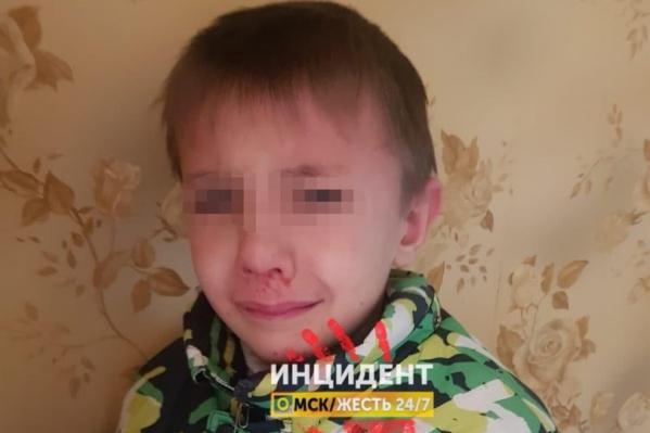 Один из пострадавших — мальчик, предположительно является сыном мужчины