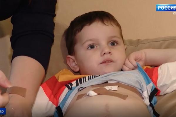 Чтобы получать необходимые питательные вещества, мальчику подключили центральный венозный катетер