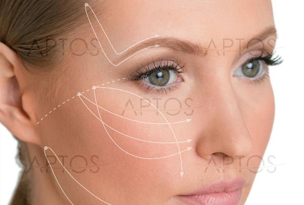 Лифтинг нитями Aptos: дотянись до совершенства