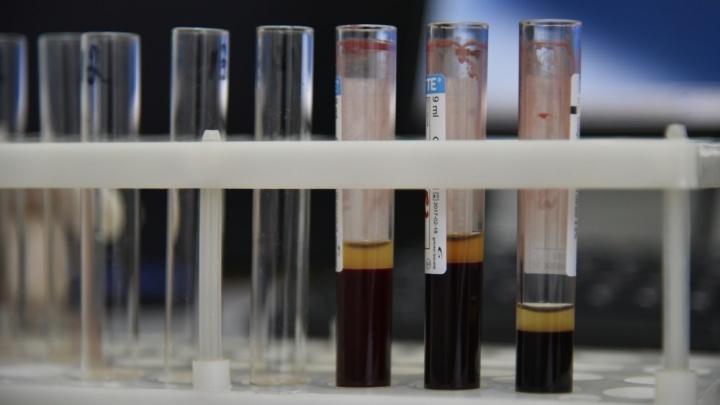 В новосибирском Центре профилактики тромбозов научились предотвращать инсульт