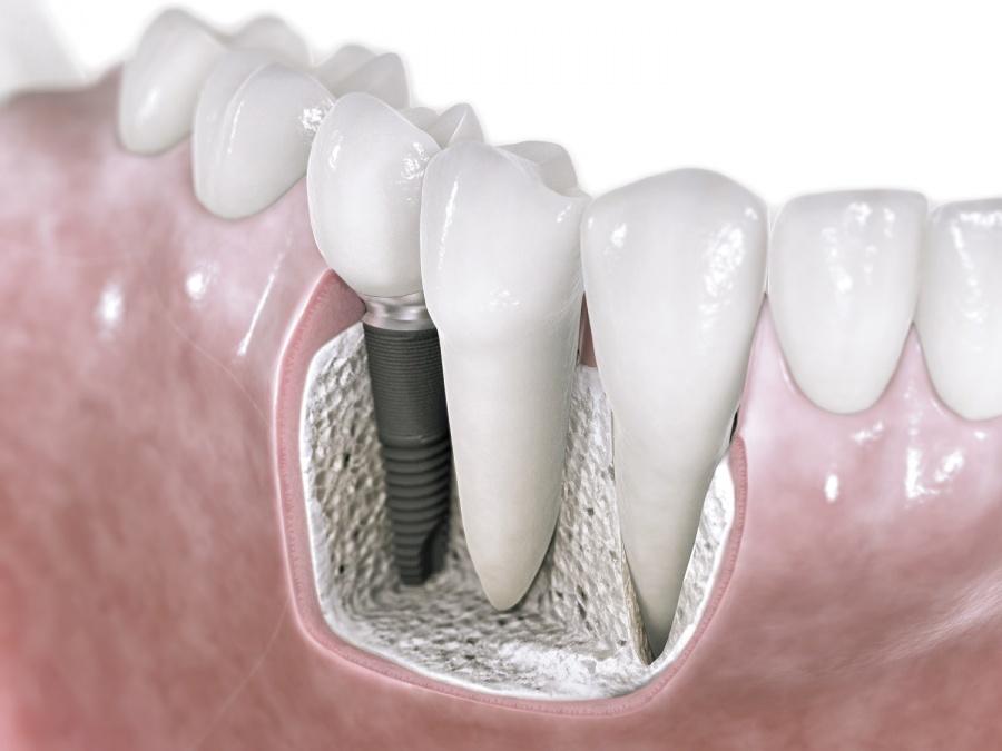Импланты зубов для пива