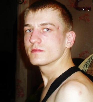 В Новосибирске пропал парень со шрамом