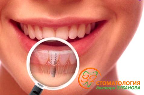 В Новосибирске предлагают выгодно восстановить утраченные зубы к весне