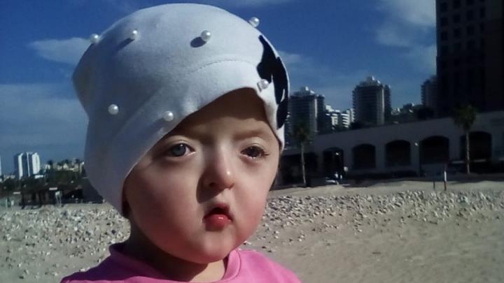 Девочке с деформированным лицом и сросшимися пальцами из Башкирии отказали в операции