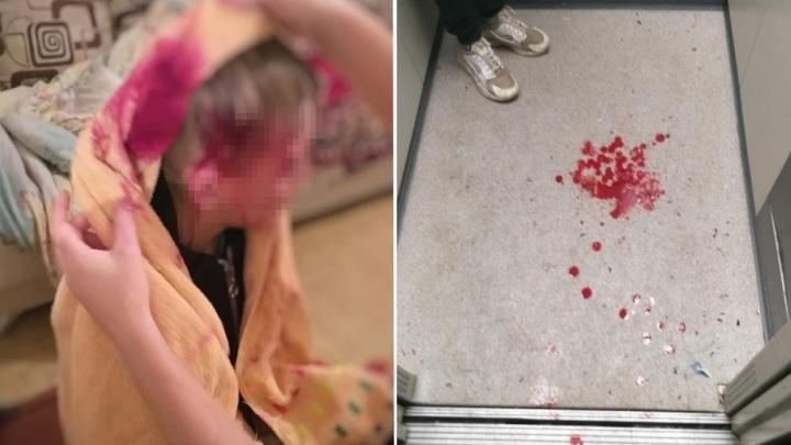 В Нефтекамске 10-летнему ребенку разбили голову о железную дверь