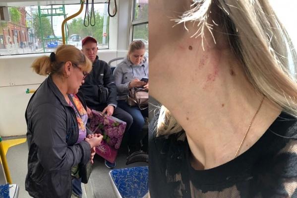 Сибирячка утверждает, что кондуктор схватила ее за шею и ударила. Фотографии она разместила в группе«Новосибирская служба эвакуации «АСТ-54»