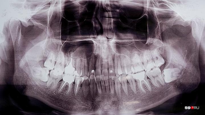В Прикамье рентген-кабинет в поликлинике закрыли из-за нарушения санитарных норм