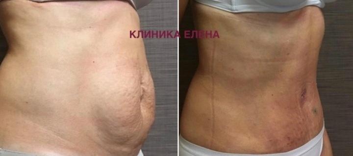 Результат всегда выше ожидания: в новосибирской клинике проводят эффективную липосакциюBodyTite