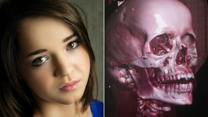 Ехала с конкурса красоты: челябинские хирурги вернули зрение пострадавшей в жутком ДТП с BlaВlaСar