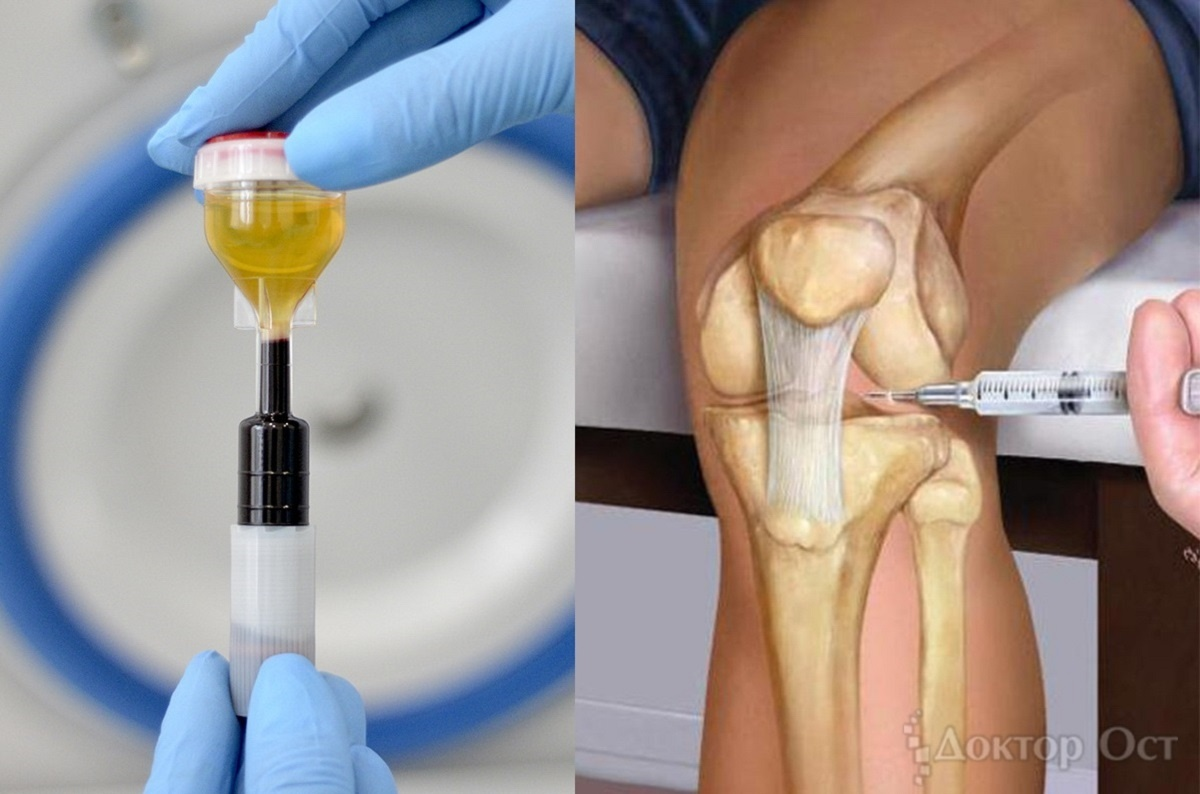 Если болят суставы по ночам металл-металл техника протезирования тазабедренного сустава