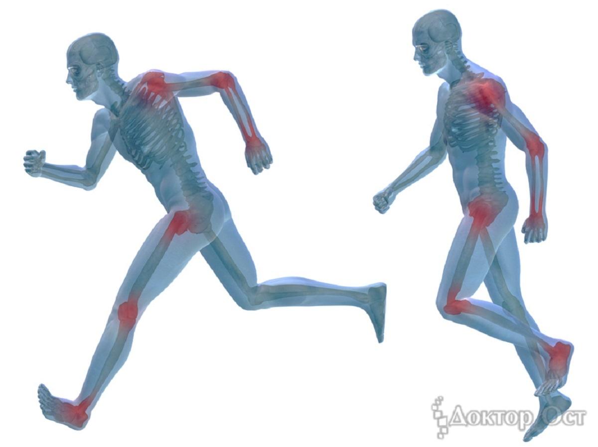Жизнь без боли: эксперты рассказали, что делать, если болят суставы, и можно ли избежать операции
