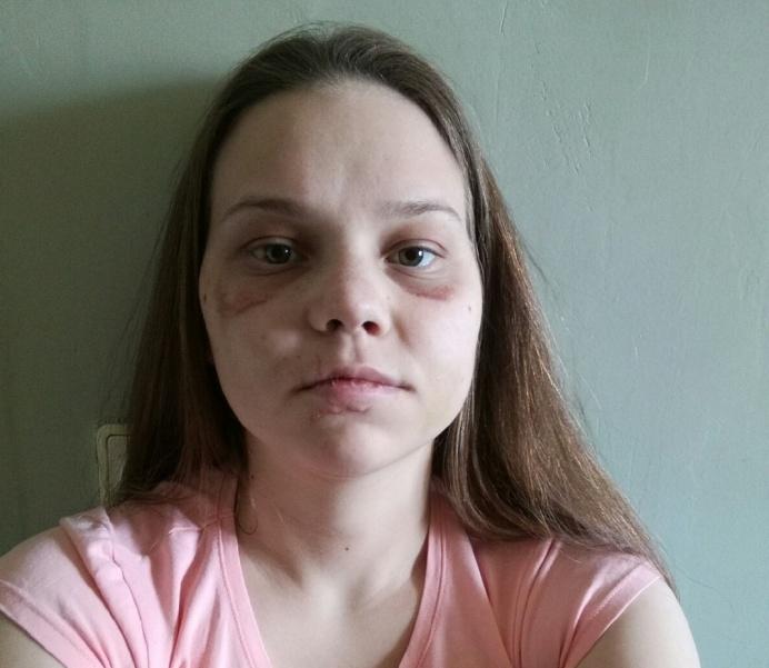 Ольга Пискотина получила тяжкий вред здоровью