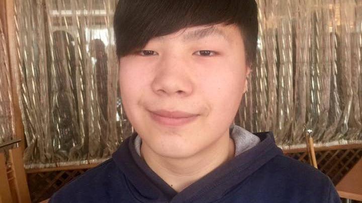 Новосибирскому подростку вживили искусственное ухо за 600 тысяч
