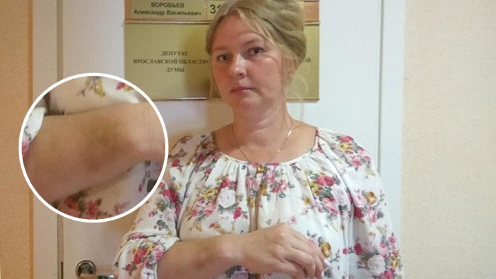 Во время визита Вероники Скворцовой в Ярославль на пикетчика напала толпа мужчин с флагами России