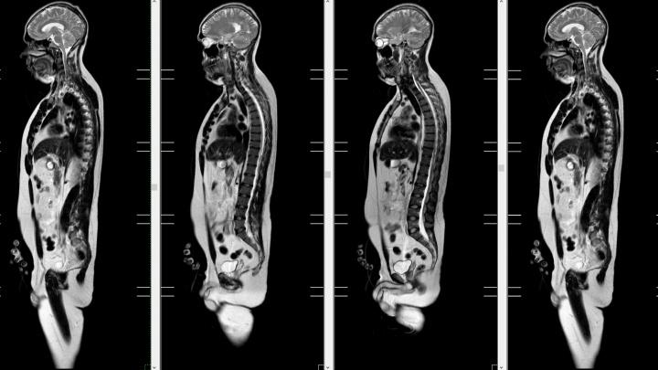 Чувствовать себя спокойнее: в медцентре «Луч» сканируют все тело, чтобы выявить рак