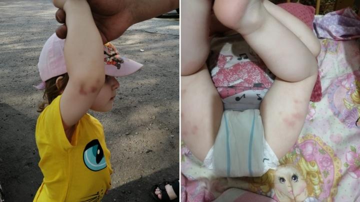 Омские следователи начали проверку после жалобы родителей на синяки у двухлетней дочери