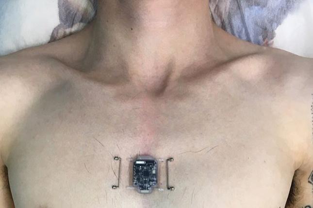 26-летний программист первым в России решил установить себе компас прямо в груди
