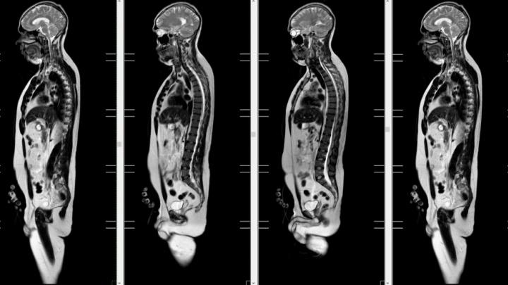 Когда рентгена недостаточно: врачи — о быстром и эффективном способе определить источник боли
