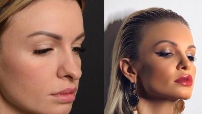 Красотки, которые водят нас за нос: сравниваем фотографии 10 тюменок до и после ринопластики