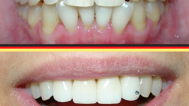 Самые наболевшие вопросы о красоте и здоровье зубов
