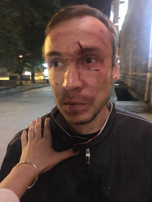 В таком виде после драки был друг актеров Егор, которому досталось бутылкой по голове