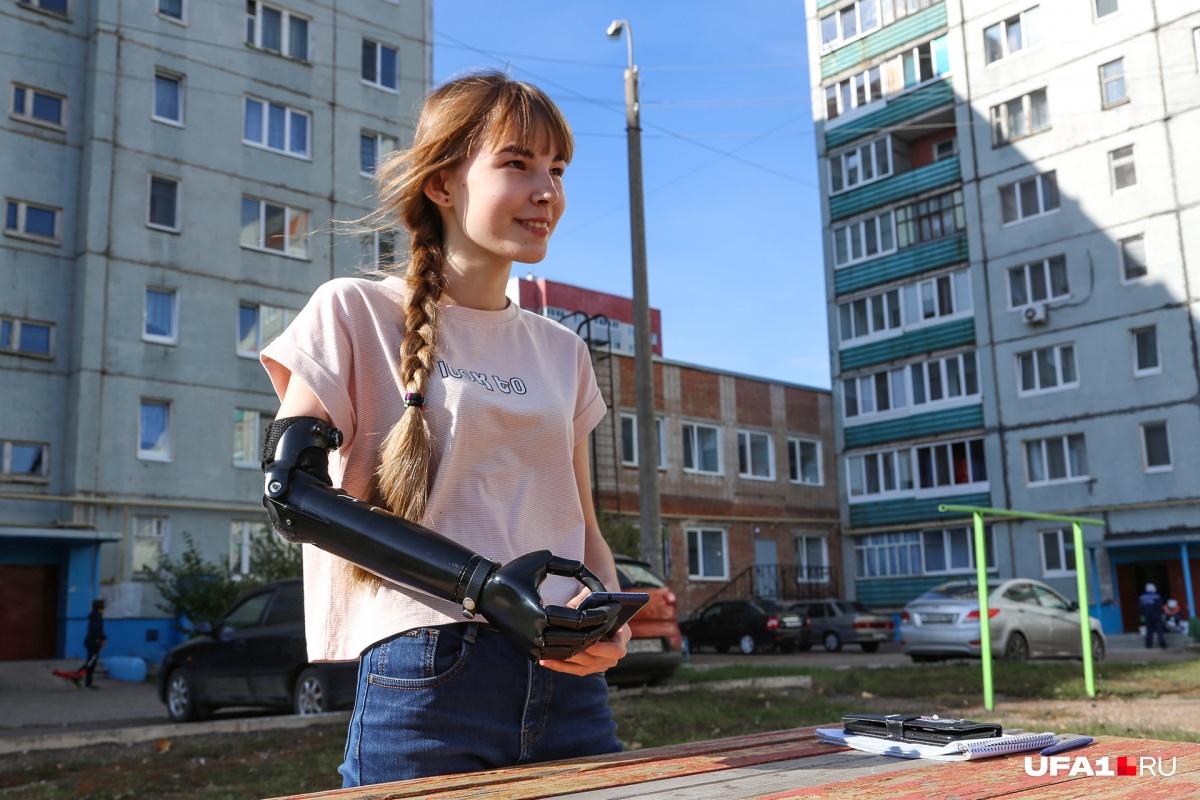 С новым протезом Наталья чувствует себя комфортно