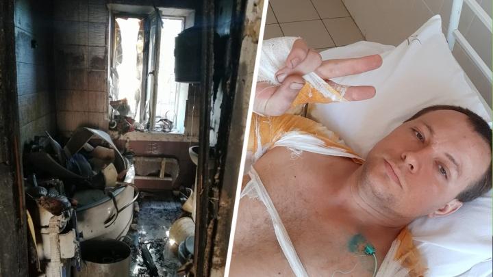 «Боль жуткая и трудно дышать»: житель Ростовской области рассказал, как спас семью из огня