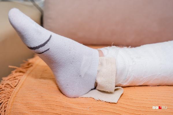 За первые четыре дня ноября некоторые пермяки получили серьезные травмы, в том числе переломы конечностей