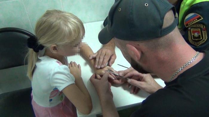 Спасатели сняли с пальца 7-летней девочки металлическую гайку (фото)