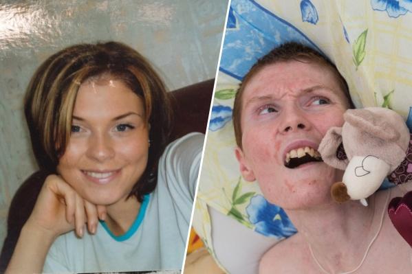 Ирина сильно изменилась за десять лет из-за повреждений мозга, полученных на пожаре