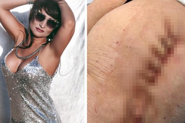У красивой женщины после операции оказалась обезображена часть тела
