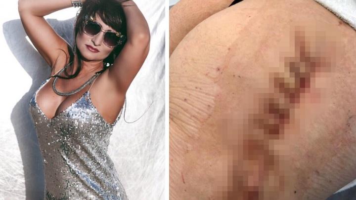 «Я просто хотела быть красивой»: жительница Самары лишилась части тела после пластической операции
